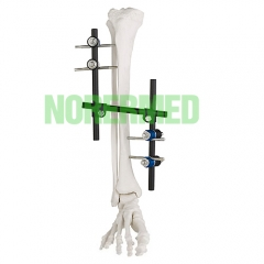 Orthopedic Z type Tibial & Femur External Fixator...